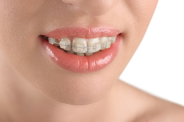 Tips From An Orthodontist: Foods After New Dental Braces